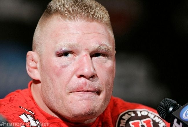 Brock Lesnar Retires From UFC Following Yet Another Loss